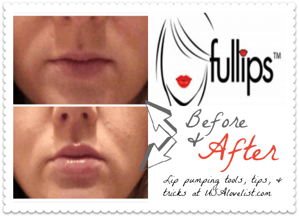 fullips-lip-enhancement