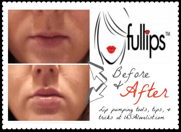 fullips-lip-enhancement